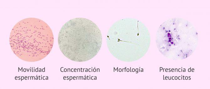 Imagen: Parámetros microscópicos del análisis del semen