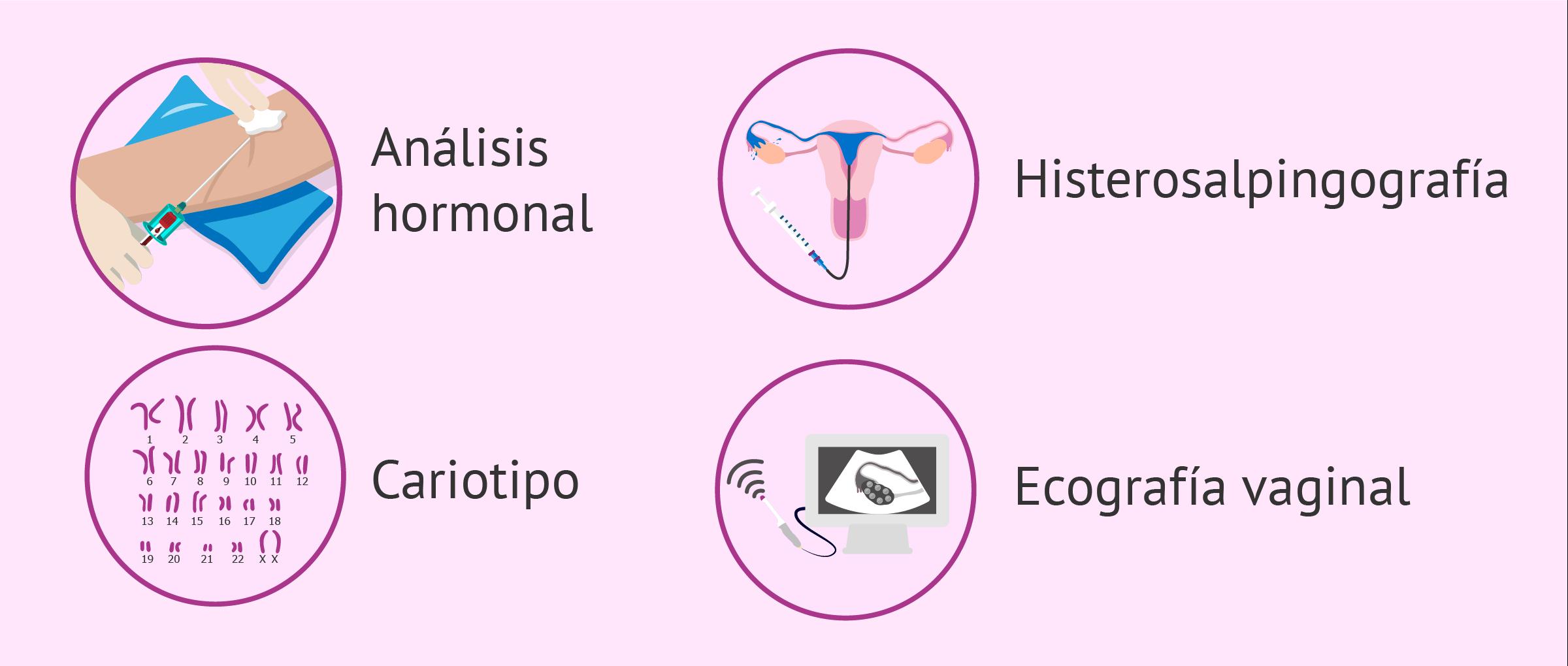 Pruebas de infertilidad femenina