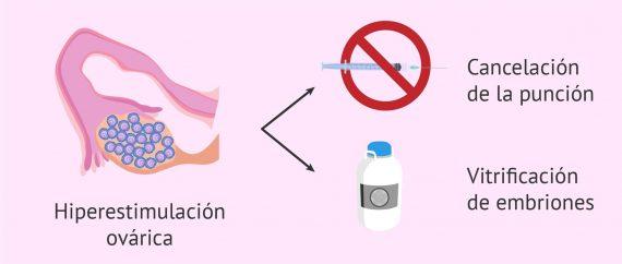 Hiperestimulación del ovario por estimulación ovárica