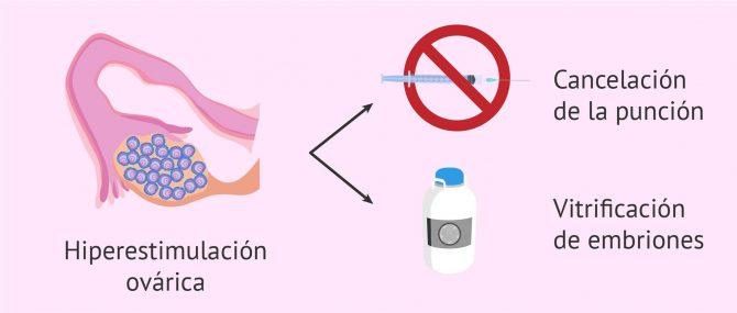 Imagen: Hiperestimulación del ovario por estimulación ovárica