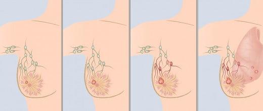 Es un crecimiento desordenado de las células mamarias, normalmente se identifica por el cambio de forma del pecho.
