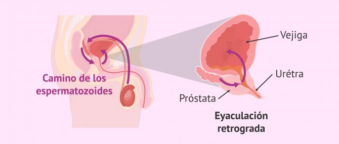 Imagen: eyaculacion-retrograda-ampliacion