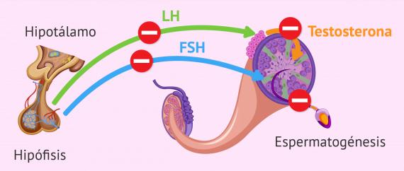 Factor endocrino de esterilidad masculina