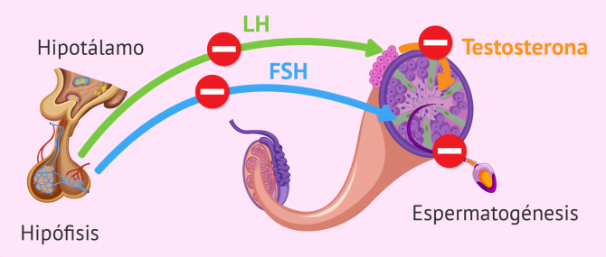 Imagen: Factor endocrino de esterilidad masculina