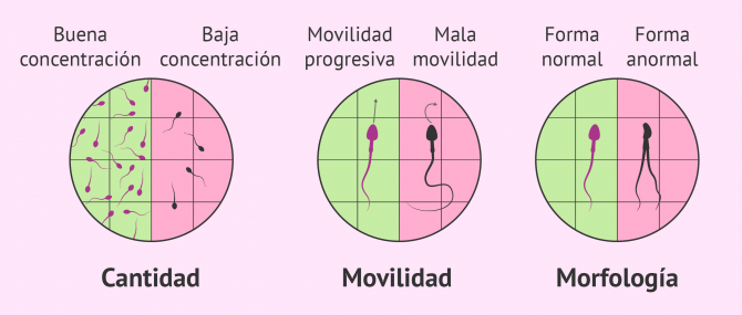 Imagen: Factor espermático de esterilidad masculina