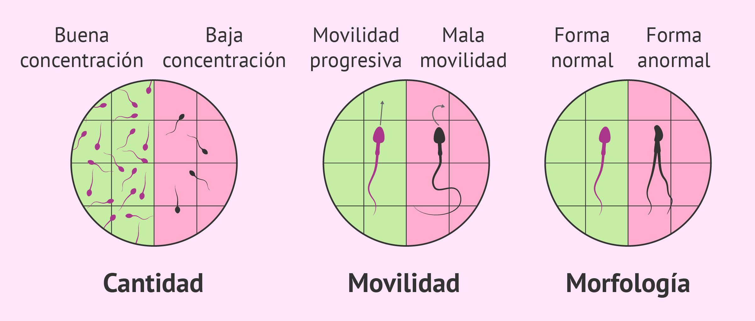 Factor espermático de esterilidad masculina