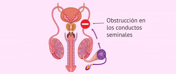Factor postesticular de esterilidad masculina