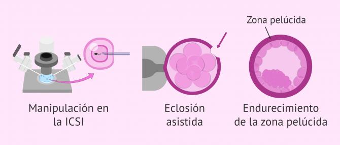 Imagen: ¿Qué influye en la probabilidad de gemelos en FIV?