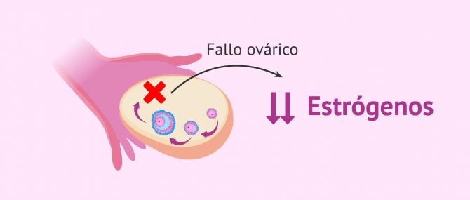 ¿Qué es la insuficiencia ovárica precoz (IOP)? – Causas y tratamiento