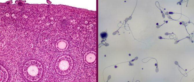 Imagen: Faltan donantes de ovocitos y de esperma
