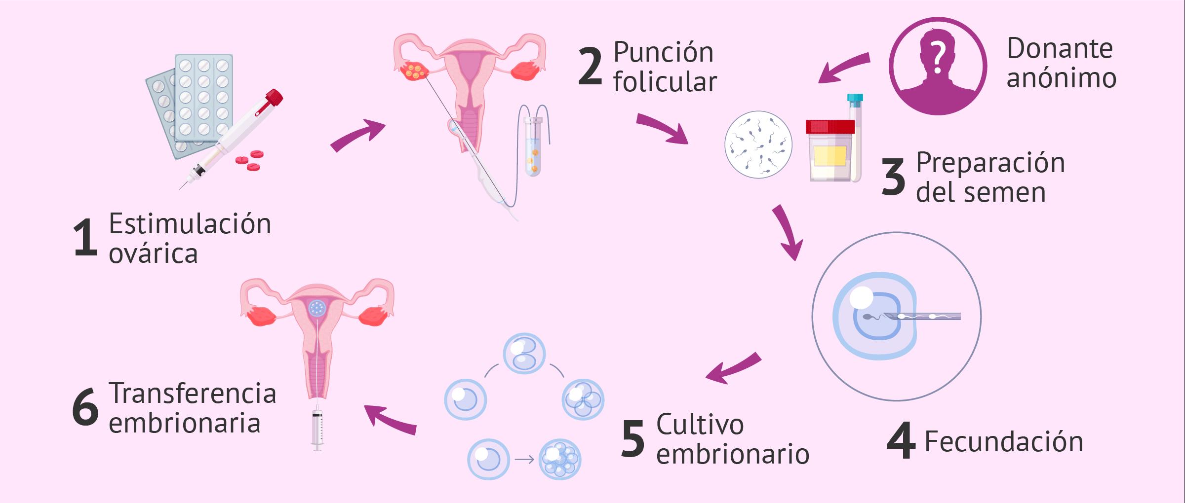 Fecundación in vitro para mujer soltera