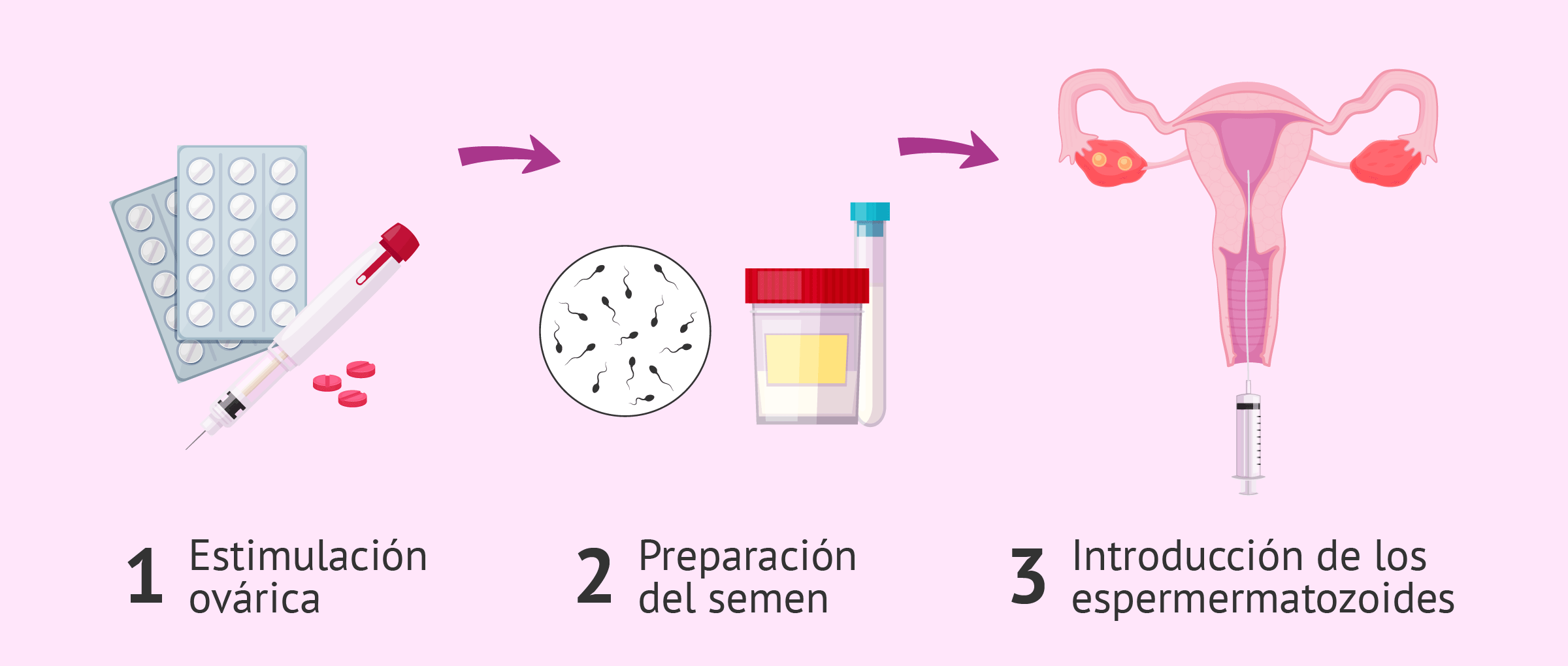 Inseminación artificial intrauterina