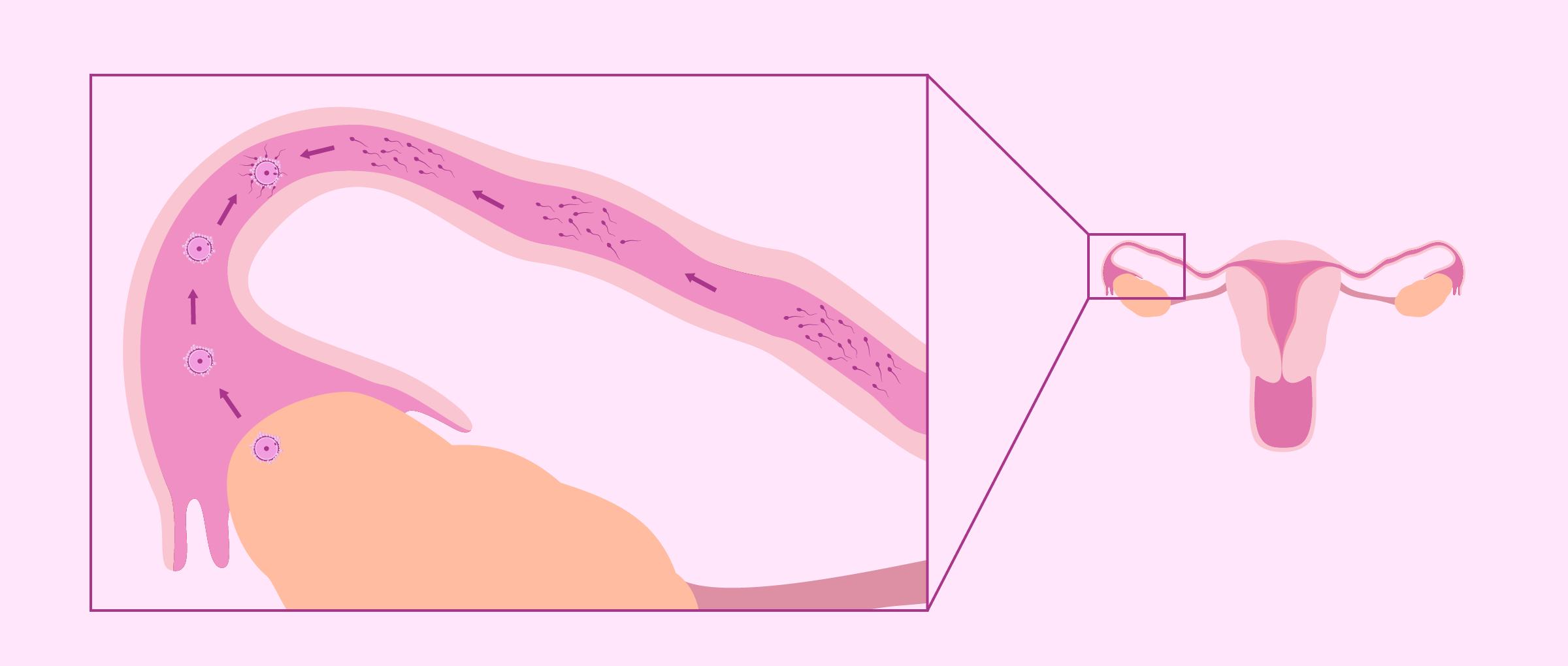 Fecundación natural en las trompas de Falopio