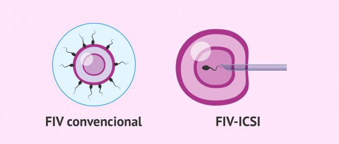 Imagen: FIV convencional - ICSI