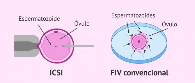 Imagen: Comparación entre la FIV convencional y la ICSI