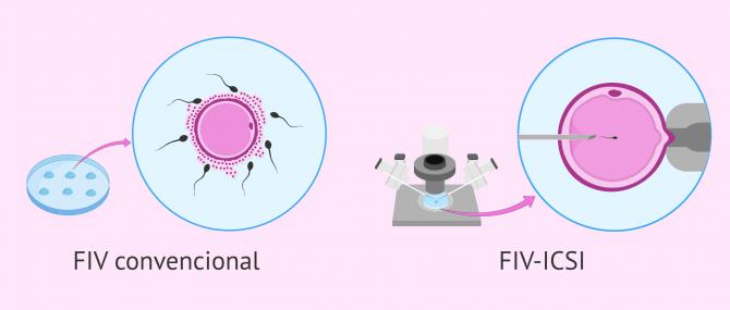 FIV o ICSI: ¿Qué es mejor? ¿Cuál es la diferencia?