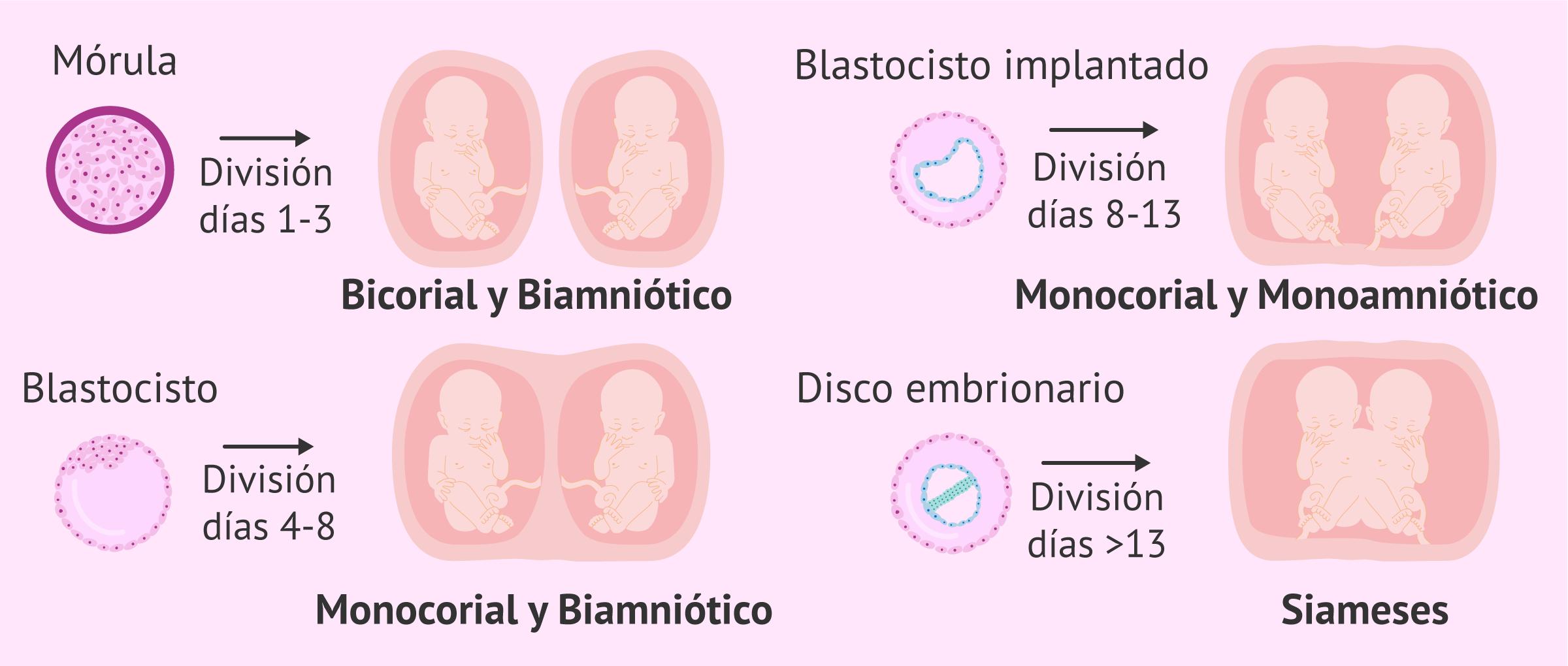 El embarazo múltiple