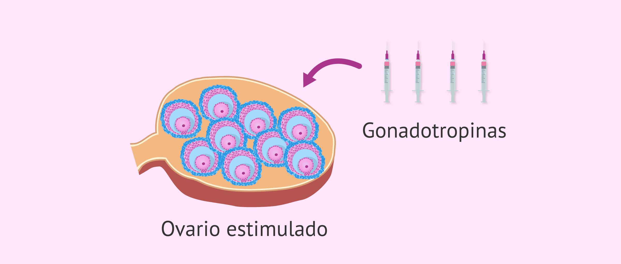 gonadotropinas