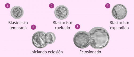 Expansión del blastocisto