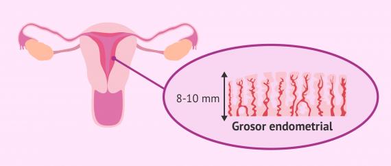 Imagen: Grosor endometrial para favorecer la implantación embrionaria
