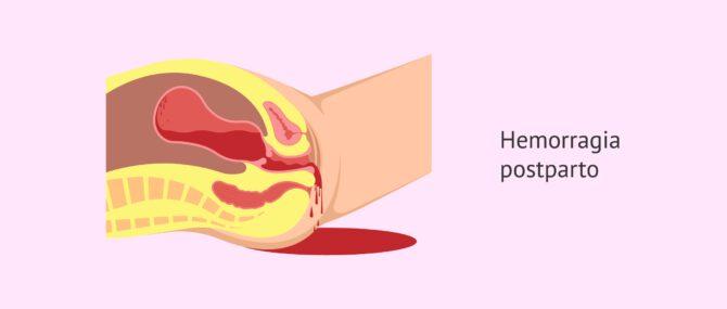La hemorragia postparto