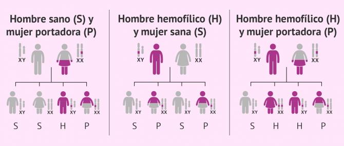 Imagen: Formas de transmitir la hemofilia de padres a hijos