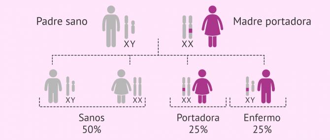 Imagen: Herencia del Síndrome de X Frágil