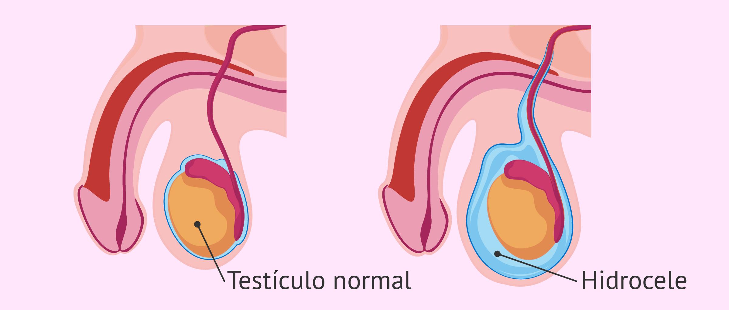 el cáncer testicular causa impotencia