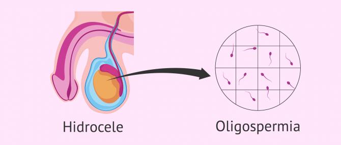 Imagen: Oligospermia e hidrocele testicular