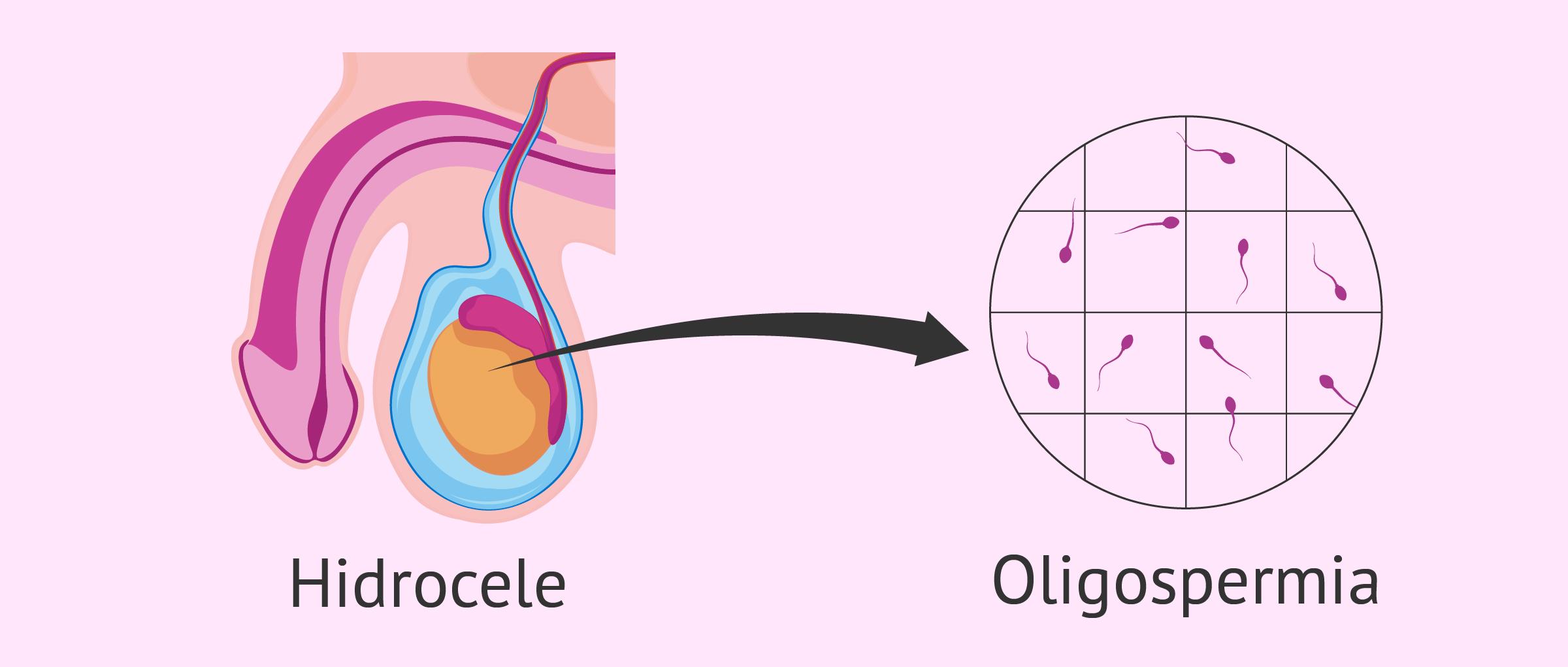 Oligospermia e hidrocele testicular