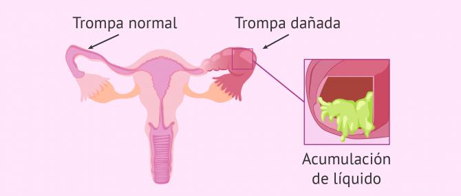 Imagen: Trompa normal y trompa afectada por hidrosálpinx