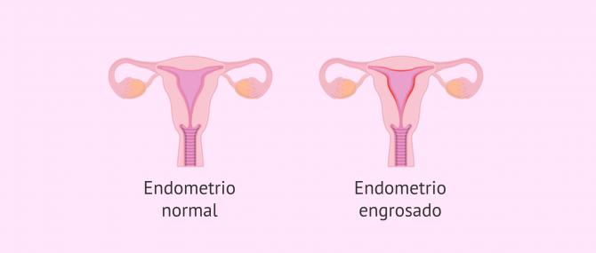 Imagen: Endometrio normal y endometrio con hiperplasia