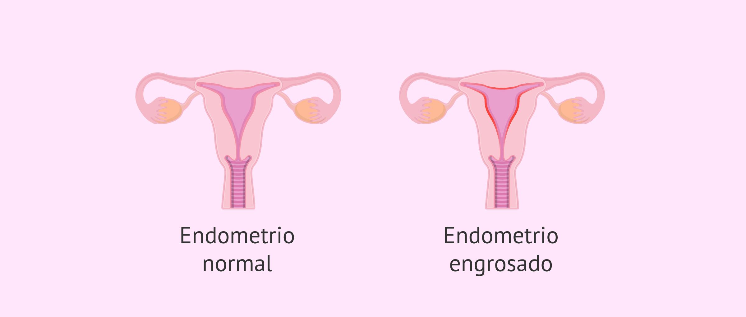Endometrio normal y endometrio con hiperplasia