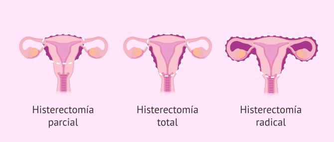 Imagen: histerectomia-tipos-glosario