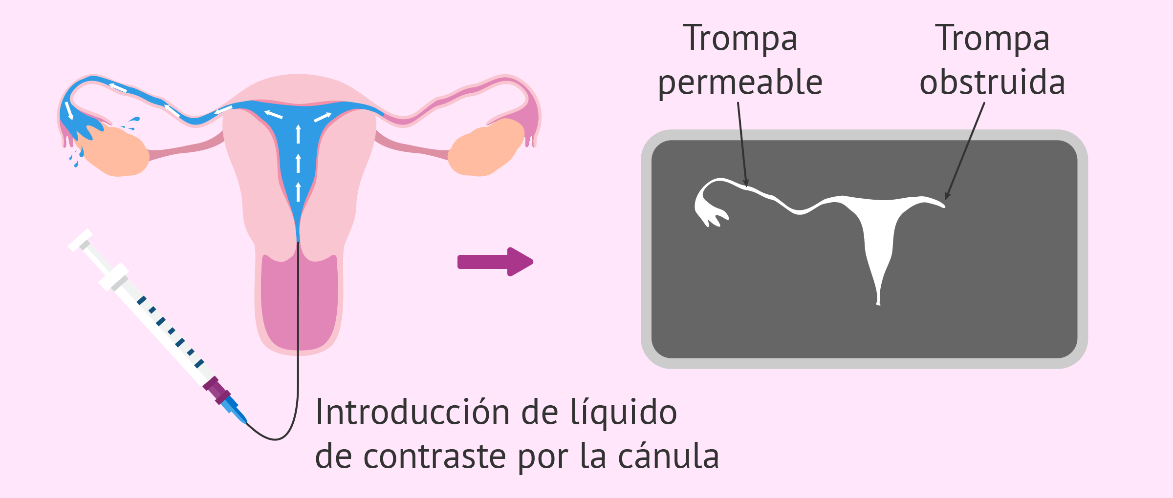 Resultado de la histerosalpingografía y obstrucción tubárica