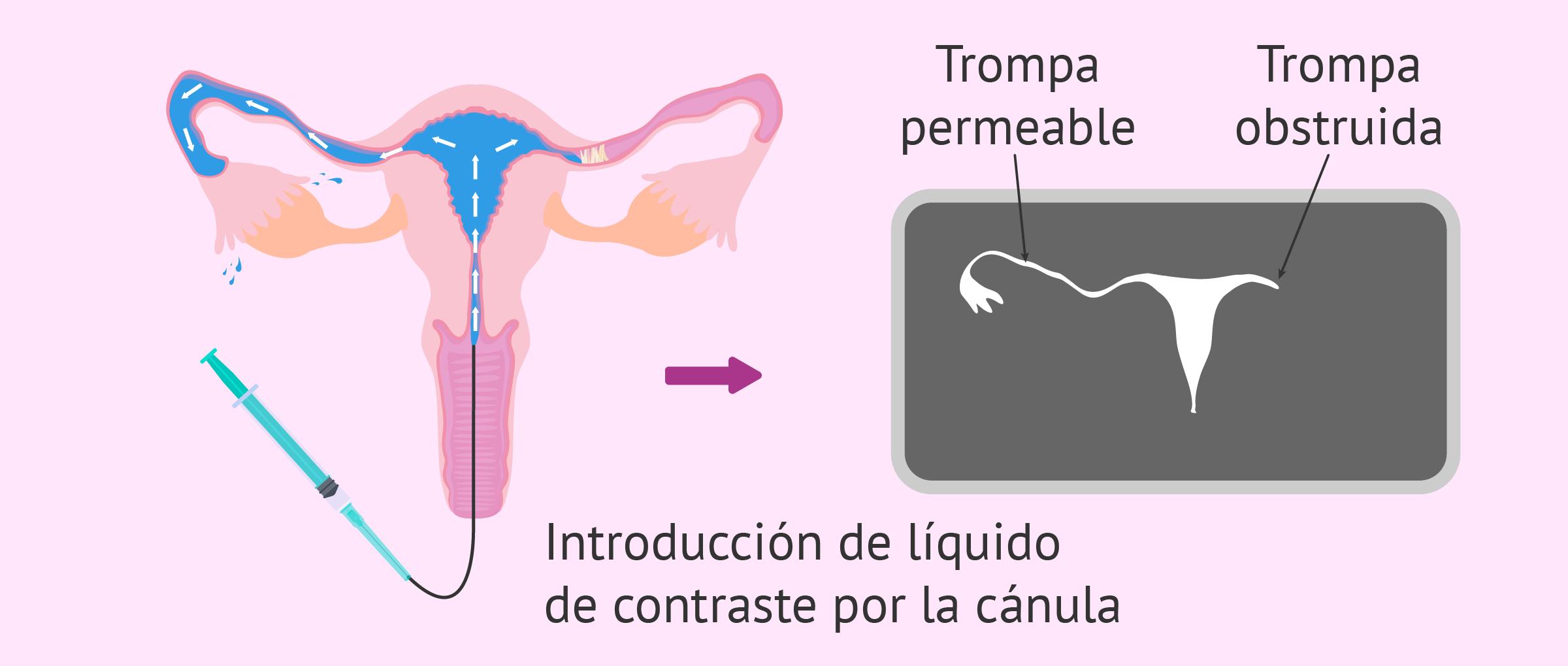 Histerosalpingografía convencional