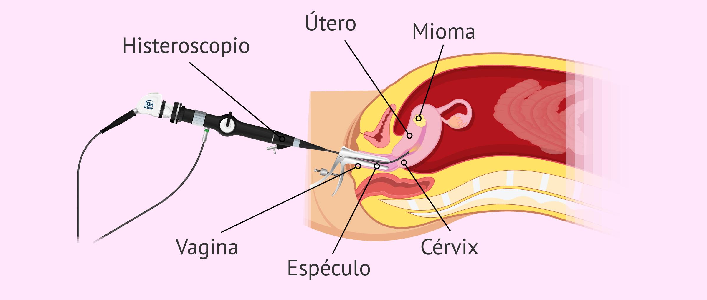 Histeroscopia para extraer un mioma