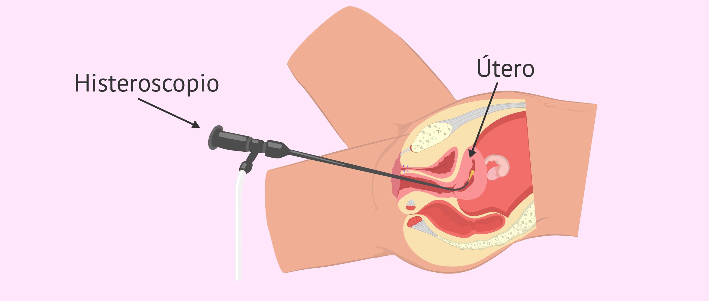 ¿Cómo se hace una histeroscopia?