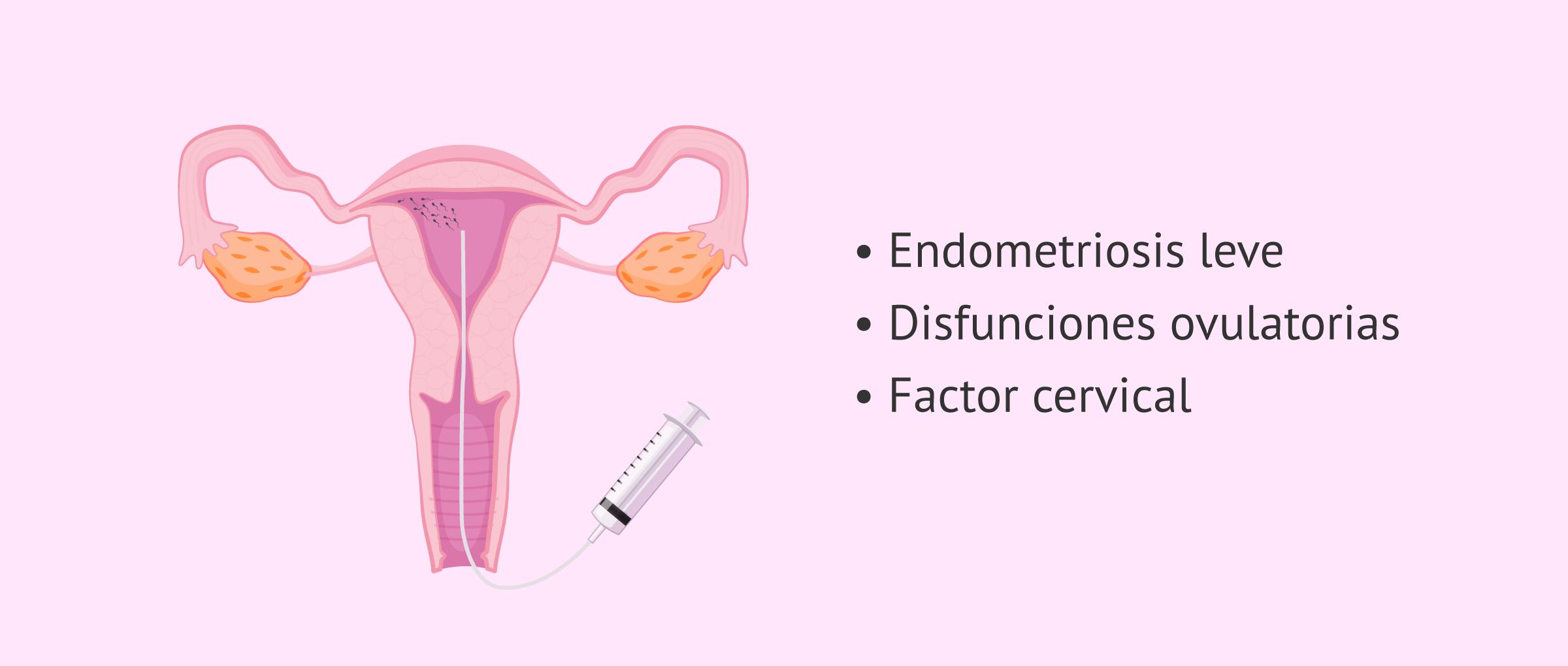 Inseminación artificial (IA) e infertilidad femenina