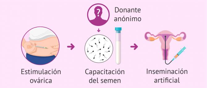 ¿Cómo ser madre soltera? – Tratamientos de fertilidad y precios