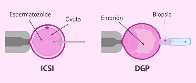 Imagen: Técnicas complementarias en FIV