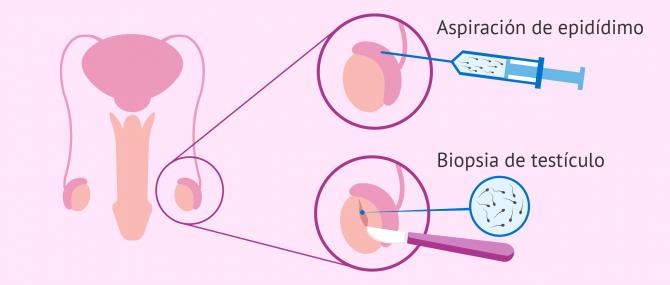 beneficios de la reproduccion asistida