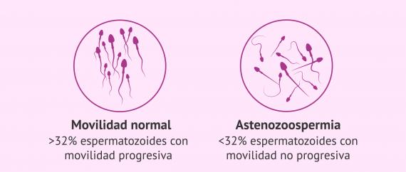 Astenozoospermia.
