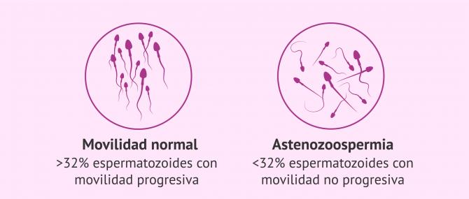 Imagen: Astenozoospermia.