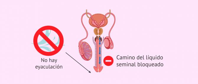 Imagen: Aspermia o ausencia de semen eyaculado