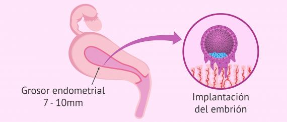 Imagen: Implantación en el endometrio