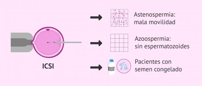 Imagen: ICSI como solución para la esterilidad masculina