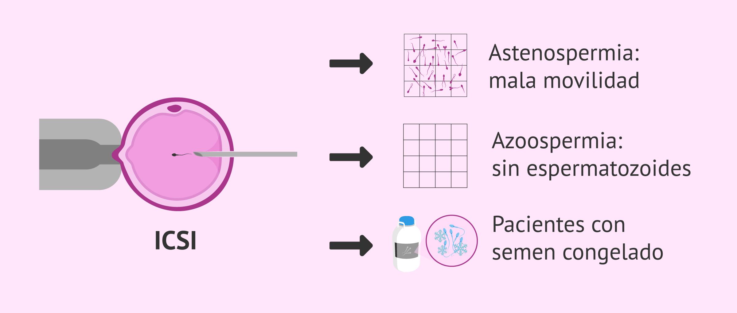 ICSI como solución para la esterilidad masculina