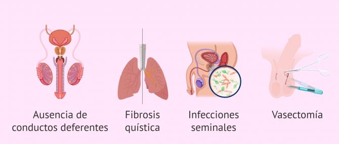 Imagen: ¿Cuándo se realiza la biopsia testicular?