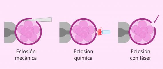 Imagen: Envuelta proteica del embrión